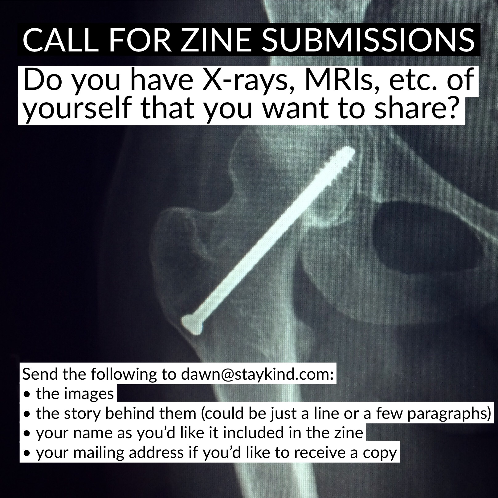 Stories from the inside stay kind do you have x rays mris etc of yourself that you want to share in a zine solutioingenieria Choice Image